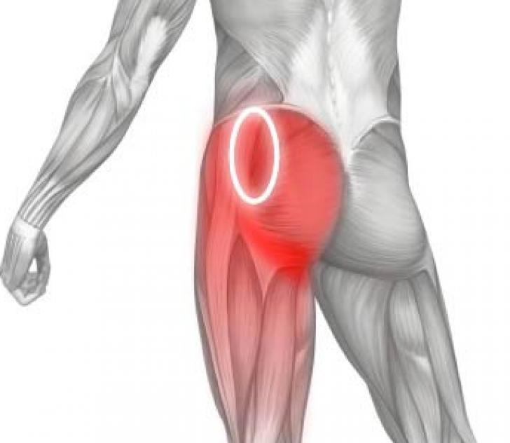 Когда беспокоит боль в области ягодицы отдающая в ногу