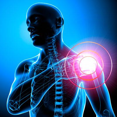 Невралгия плечевого сустава симптомы лечение операция тазобедренного сустава в москве цены