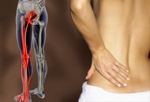 Невралгия седалищный нерв лечение